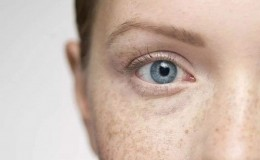 面部黄褐斑是可以去除的 去斑小窍门