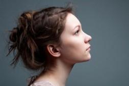 女生嘴角长痘是什么原因?嘴角长痘的处理方法!