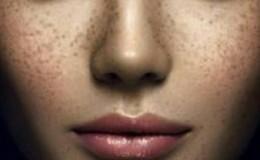 怎么减少色斑 如何预防色斑的产生