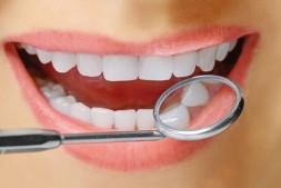 你不知道的快速美白牙齿的小方法